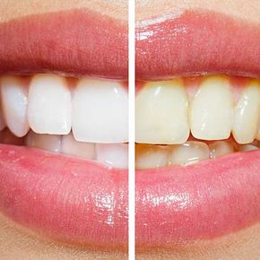 solutions for yellow teeth in Edmonton, Alberta